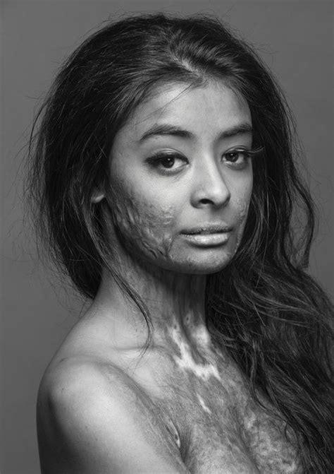 Ryonen Scars Her Face 17th Century White Lotus Judith Ragir