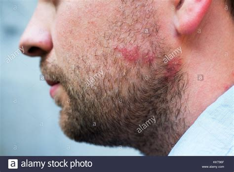 Rash Stock Photos Rash Stock Images Alamy