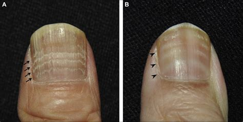 transverse lines   nails  american journal