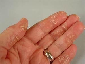 Болезнь псориаз передается или нет при половых путях