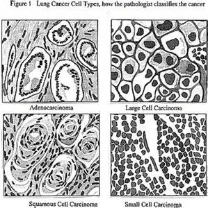 Small Cell Lung Cancer Types
