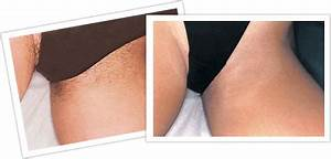 Chiltern Medical Clinic Reading Laser Hair Removal.