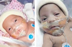 Boy Girl Twin Newborn Baby in Hospital