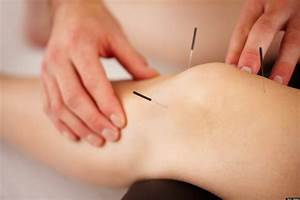 What Does Acupuncture Feel Like