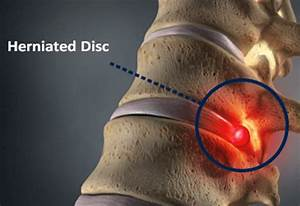 how long does pain last after spinal fusion