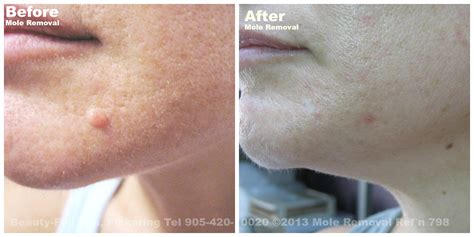 Mole Removal Before & After | Beauty-Full Spa