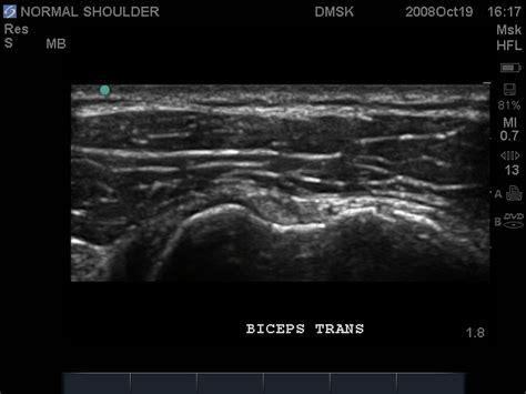 Shoulder Ultrasound Pathology