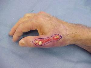 Purulent discharge from surgical wound