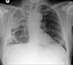 Pleural Plaques Follow Up  Pneumonia Asbestos