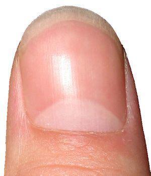 fingernail colors color of fingernails and toenails health indicator chart