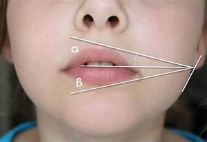 Schönheit Berechnen : lippenaufspritzung mit hyalurons ure gel in berlin lippen aufspritzen lippenvergr erung ohne ~ Themetempest.com Abrechnung