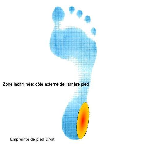 douleur sur le cote exterieur du pied zone incrimin 233 e c 244 t 233 externe du talon oxa m 233 dical