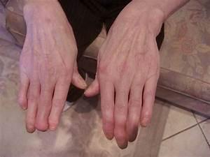 Лечение псориаза псориатический артрит