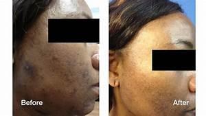 Dark Skin Laser Skin Care Treatments | Skin Perfect ...