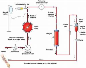 Diagnosis  Treatment  And Prevention Of Hemodialysis Emergencies