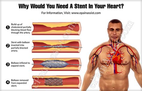 why would you put your house in a trust why would you need a stent in your
