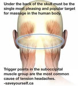 Massage, Tension headache and Migraine on Pinterest  Migraine Massage