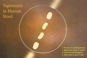 78+ [ Small White Worms In Stool Of Humans ] - Followed ...