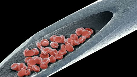 Blood On A Needle, Sem Stock Video 11108740   HD Stock Footage