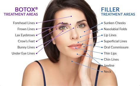 botox cosmetic st louis cosmetic surgery missouri