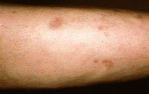 Diabetic Dermopathy - Pictures, Symptoms, Treatment ...