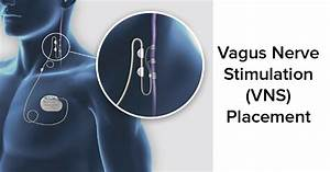 Placement  Programming And Safety Of Vagus Nerve