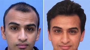 Best hair transplant for men