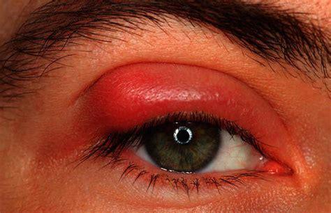 pink eye conjunctivitis symptoms  treatment page