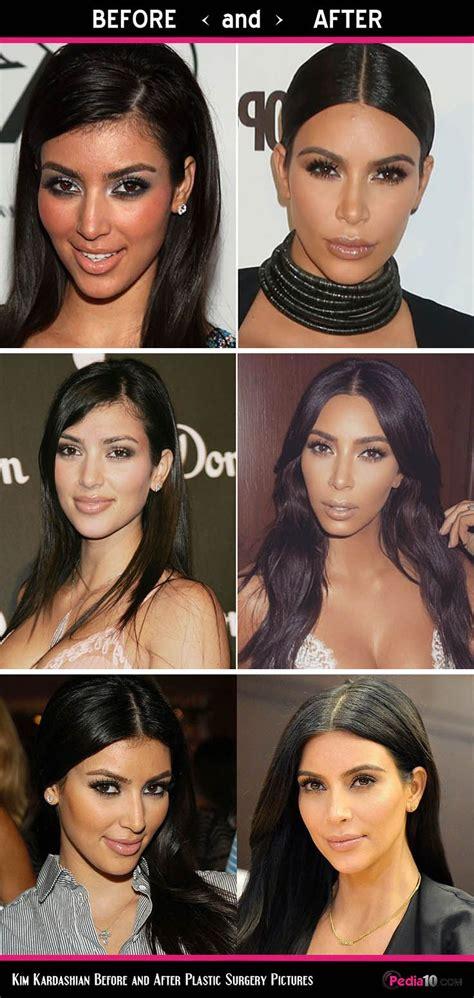 Kim Kardashian Face Pics - (Plastic Surgery Before and ...