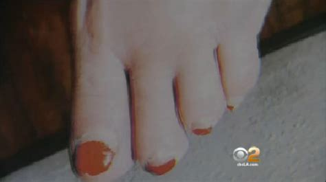 woman  pedicure loses toe sues nail salon cbs news