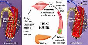 Naturally Reverse Type-2 Diabetes! - Just Naturally Healthy