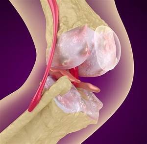Osteoporosis Treatment Receives Updated Guidelines From ACP