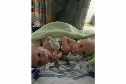 Twins Hold Conjoined Babies Conner Carter Hospital