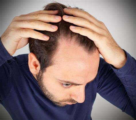 Was Hilft Gegen Wühlmäuse by Was Hilft Wirklich Gegen Haarausfall Modelvita