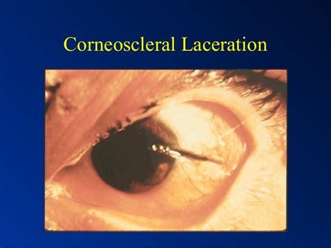 eye laceration corneoscleral globe injury ruptured penetrating foreign body orbital