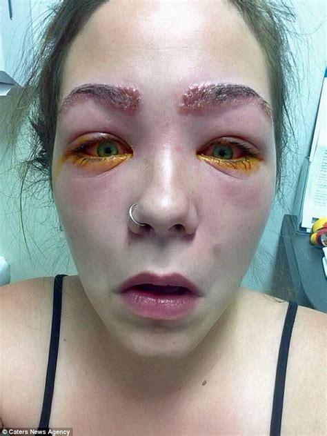 victoria woman   blind  hair dye reaction