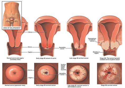 Janin 1 Minggu Sebesar Apa Science And Life Cervical Cancer