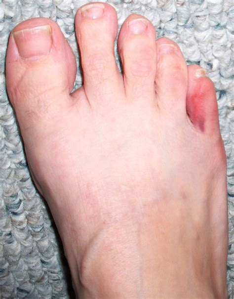 Broken Toe « Woman + Runner + Fighter. Hotel Indoor Signs Of Stroke. Painting Company Murals. Dish Wash Signs Of Stroke. School Name Stickers. Shiny Lettering. Roof Signs. Ruptured Appendix Signs. Friend 2013 Banners