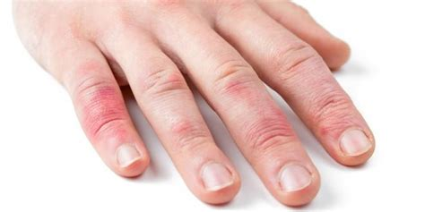 fingerknoechel rot krankheiten maengel erkennen das