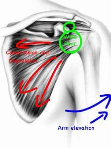 Shoulder Pain In Burlington   Again
