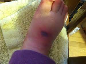 Pressure Sore Stages On Foot