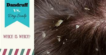 Excessive Hair Shedding Itchy Scalp by Dandruff Vs Scalp Get To Whether You One