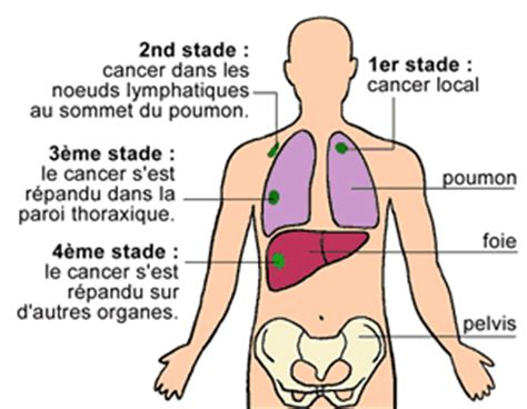 les diff 233 rents types de cancer du poumon doctissimo