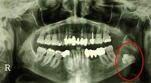 Symptome Dent De Sagesse : chirurgie osseuse maxillo faciale inclusion des dents de sagesse ~ Maxctalentgroup.com Avis de Voitures