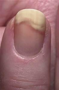 Лечить грибок на ногтях рук