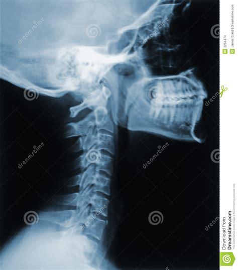 garganta raio neck ray raggi collo imagens osteoporosis spine imagem quebrado
