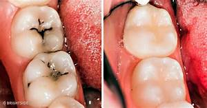 8 Simple Ways to Naturally Reverse Cavities and Heal Tooth ...