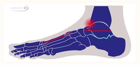 am fußgelenk fersenbeinfraktur calcaneusfraktur langzeitfolgen fehlstellung und arthrose der fu 223 gelenke