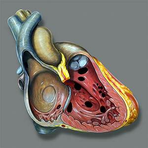 View Of The Right Side Of The Heart With Numerous