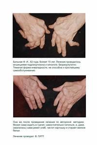 Трентал лечение артроза